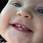 Диагностика и лечение детского кариеса