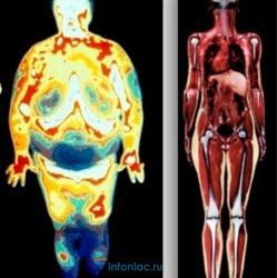 50 оттенков жира: о чем расскажут его отложения в разных частях тела и как с этим бороться